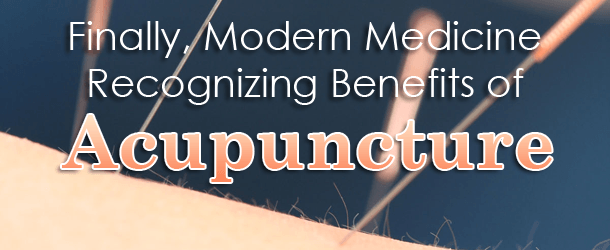 Finally, Modern Medicine Recognizing Benefits of Acupuncture