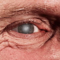 Cataracts and Alzheimer's