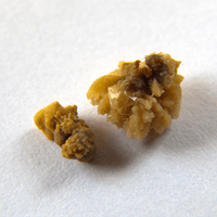 Ouch! 4 Ways to Naturally Prevent Kidney Stones