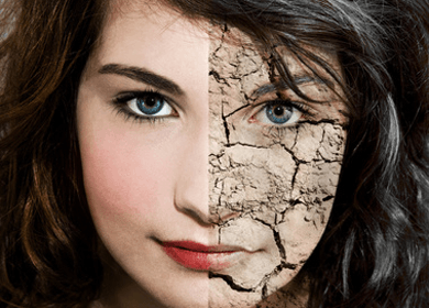 4 Reasons Your Skin is Prematurely Old