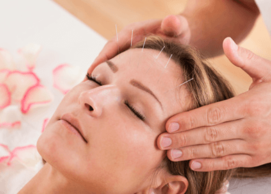 How Acupuncture Helps Migraines