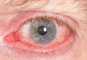 #1 Worst Oil That Promotes Blindness