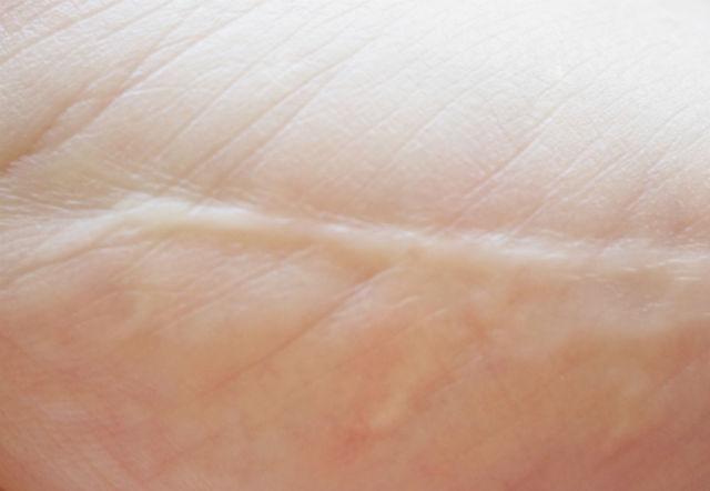 scar on skin