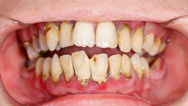 Want To Destroy Your Teeth Do These 12 Things