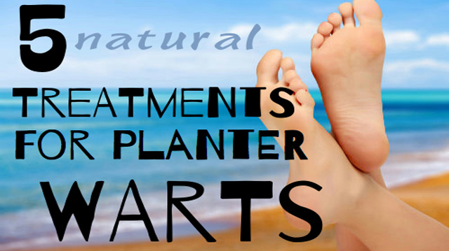 How To Naturally Treat Planters Warts