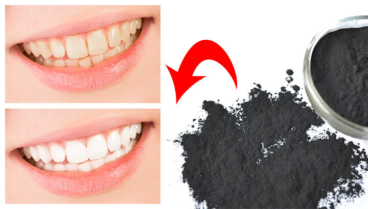 charcoal for teeth