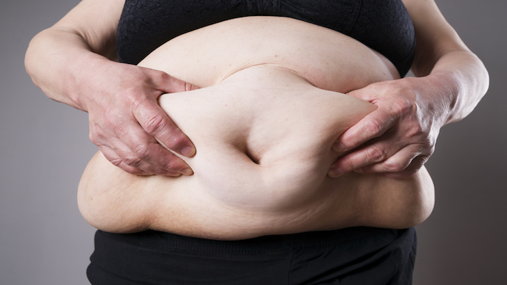 Shocking Four In 10 U S Women Now Morbidly Overweight