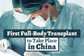 firstfullbodytransplant_730x410