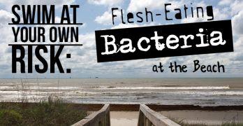 flesheatingbacteria_730x410 (1)