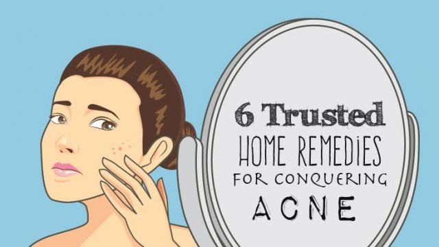 6 Trusted Home Remedies For Conquering Acne