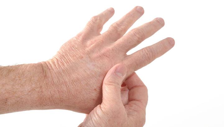 pitaya-can-help-arthritis
