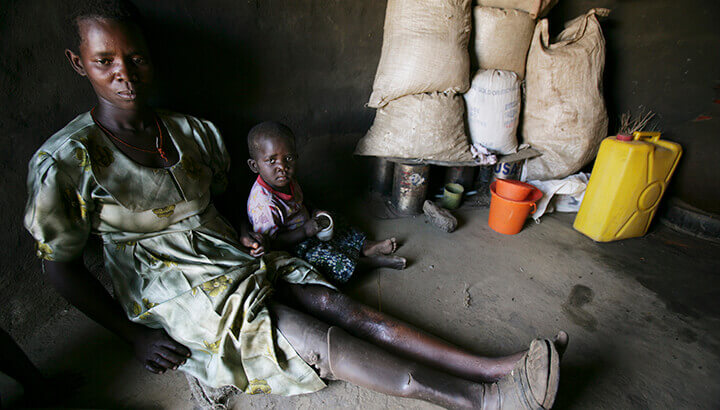 Alcholi people in Uganda were forced to live in unsanitary camps