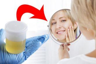 Can a golden facial treat acne