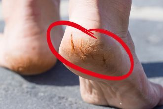 Get rid of cracked heels with this natural remedy