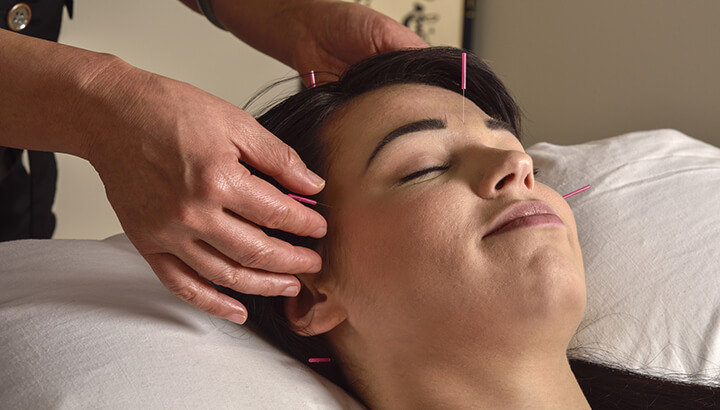 Acupuncture can help alleviate headaches.