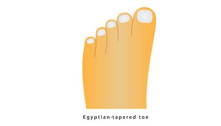 Eygptian feet