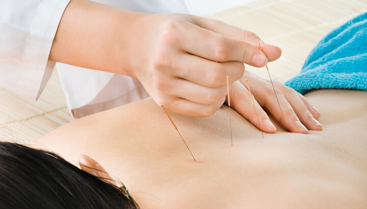 Acupuncture may help you quit smoking, reduce anxiety and get some sleep.
