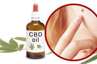 Can CBD oil get rid of moles