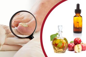 natural-remedies-for-toenail-fungus