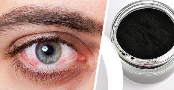 How to use activated charcoal for pink eye