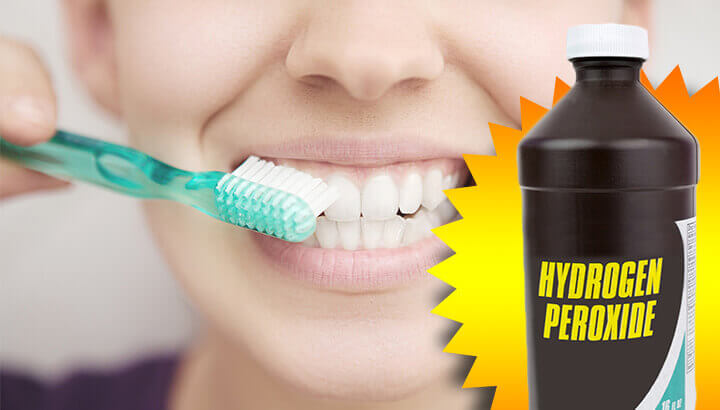 Hydrogen peroxide for teeth whitening, hair and more