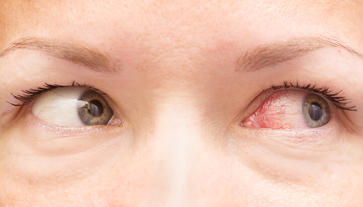 In the majority of cases, pink eye will go away on its own.