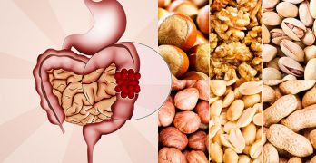 Nuts and colon cancer