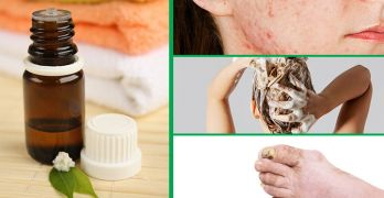Tea tree oil benefits and how to use it
