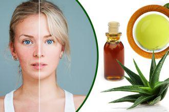 Natural rosacea remedies