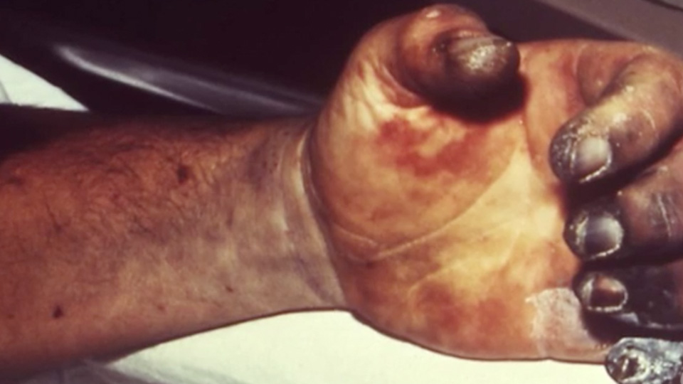 The Plague Is Here  With 124 Dead  Are Americans At Risk