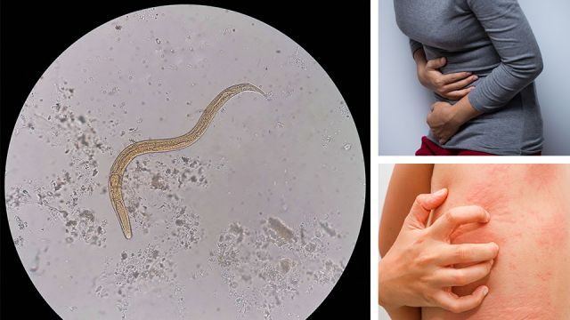 7 Strange Signs You Have A Parasite Living Inside Of You Right Now