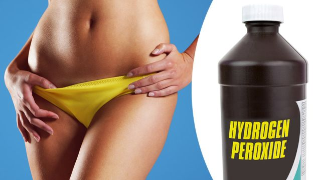 Why I Put Hydrogen Peroxide On My Vagina