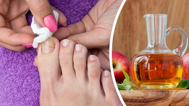 7 Natural Remedies To Get Rid of Toenail Fungus Forever ! (#3 Is A ...